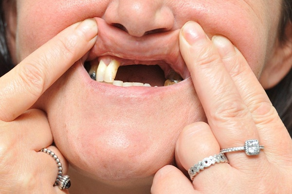 К чему снятся выпавшие зубы? Сонник выпал зуб без крови и боли