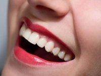 kak-otbelit-zuby-za-1-den-v-domashnix-usloviyax