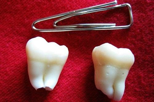 Сонник рвать зубы