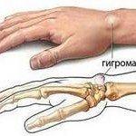 shishka-na-zapyaste-ruki-gigroma-zapyastya-1