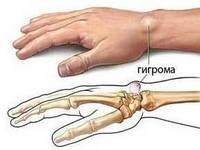 Изображение - Шишка на суставе кисти shishka-na-zapyaste-ruki-gigroma-zapyastya-1