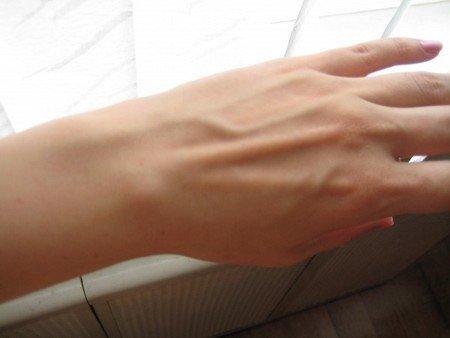 Главные причины из-за которых вылазит косточка на пальце