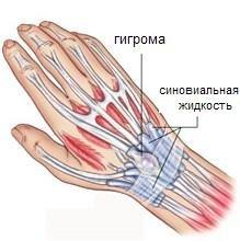Шишка на запястье руки - гигрома запястья: симптомы, причины, лечение шишки на руке