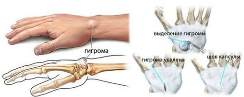 Стук в суставе кисти какие упражнения для коленных суставов