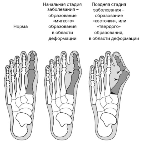 Шишка на большом пальце ноги фото