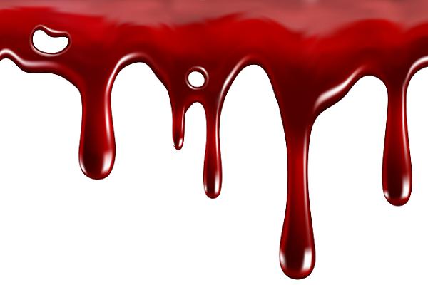Приснилось что идет кровь изо рта и носа