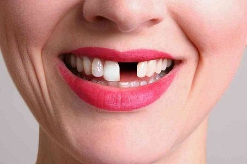 Выпадение зубов во сне без крови