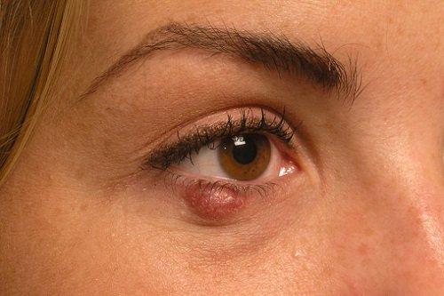 Ячмень на глазу беременной лечение 28