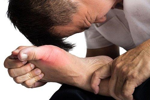 Подагра что это такое признаки и лечение отчего возникает первые симптомы