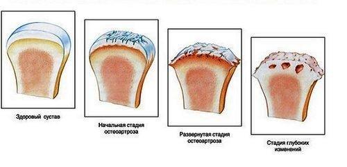 Боль в запястье левой руки: причины и лечение
